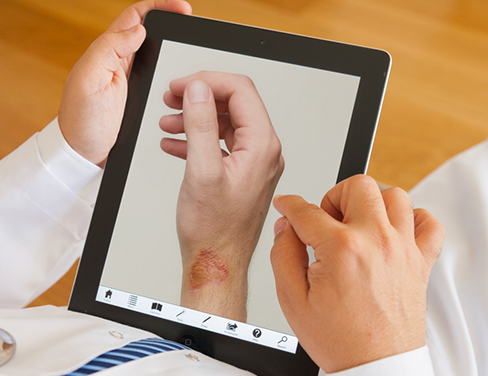 Doctor on a tablet reviewing patent wound
